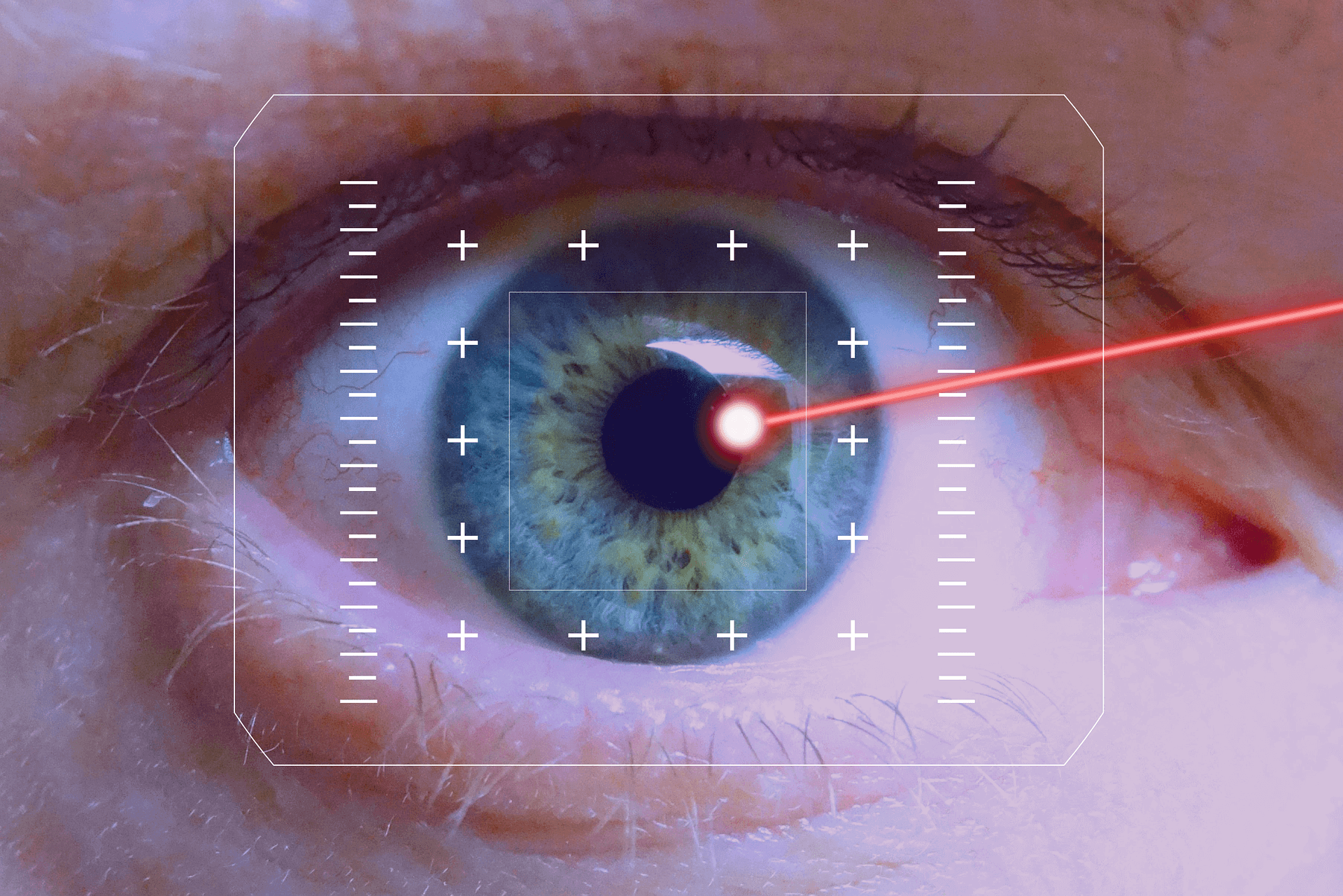 Is LASIK or Refractive Surgery an Option For Me?