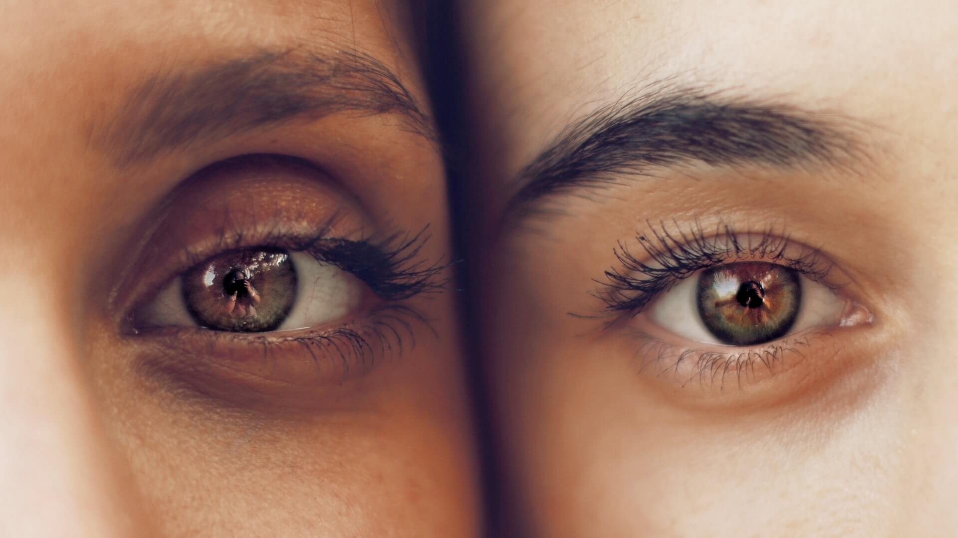 What is Lazy Eye (Strabismus)?